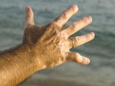 患上白癜风应当用什么方法去护理